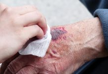 skin-tear-in-elderly