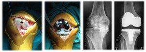 กายภาพบำบัด-ภาพถ่ายและภาพถ่ายทางรังสีแสดงการผ่าตัดเปลี่ยนข้อเข่าเทียม
